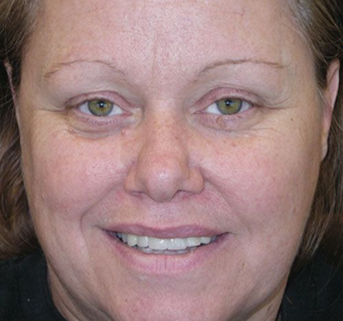<p><strong>Problem:</strong>Periodontal disease, broken and mobile teeth</p>  <p><strong>Solution:</strong> Periodontal therapy and extraction of unrestorable teeth and a six-unit bridge</p>  <p><strong>Results:</strong> Healthy gums and a nice smile.</p>