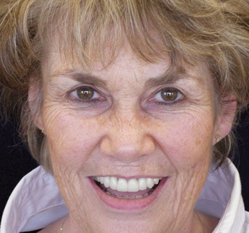 <p><strong>Problem:</strong>Missing several teeth, but did not want to wear partial dentures anymore</p>  <p><strong>Solution:</strong> Full mouth reconstruction over several years to restore her natural smile</p>  <p><strong>Results:</strong> Looks and feels great.</p>