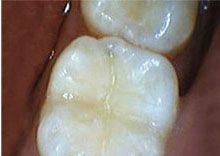 Cavity After Picture