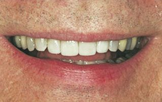 After Veneers Picture