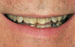 Before Veneers Picture