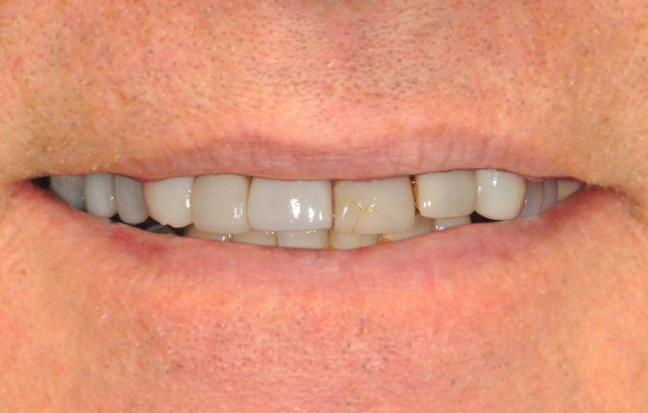 bud teeth before picture