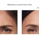Botox Before and After Frown Lines in Allentown, PA